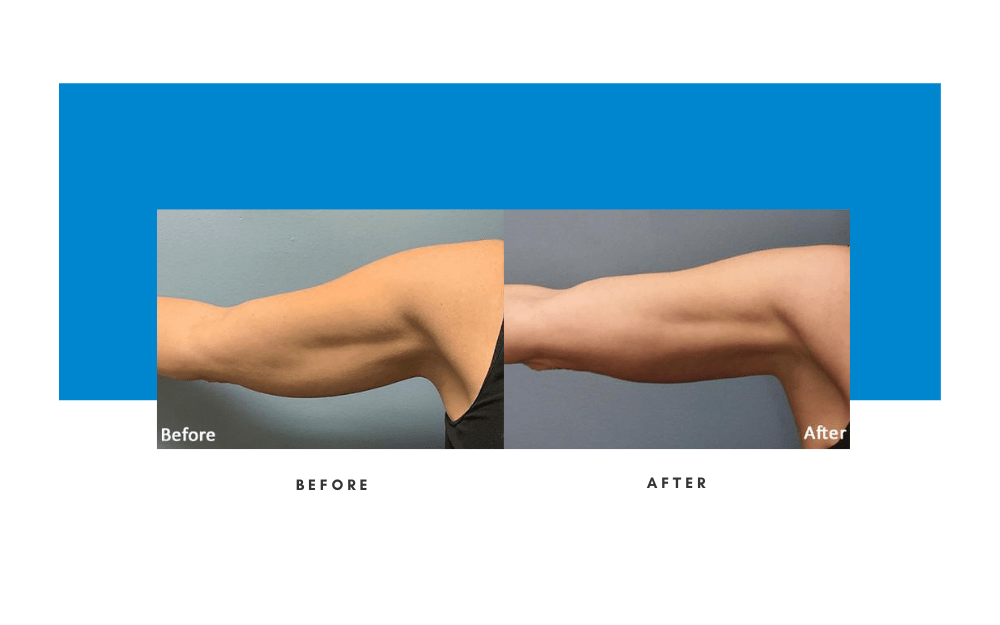 Evolve Body Sculpting Before and After